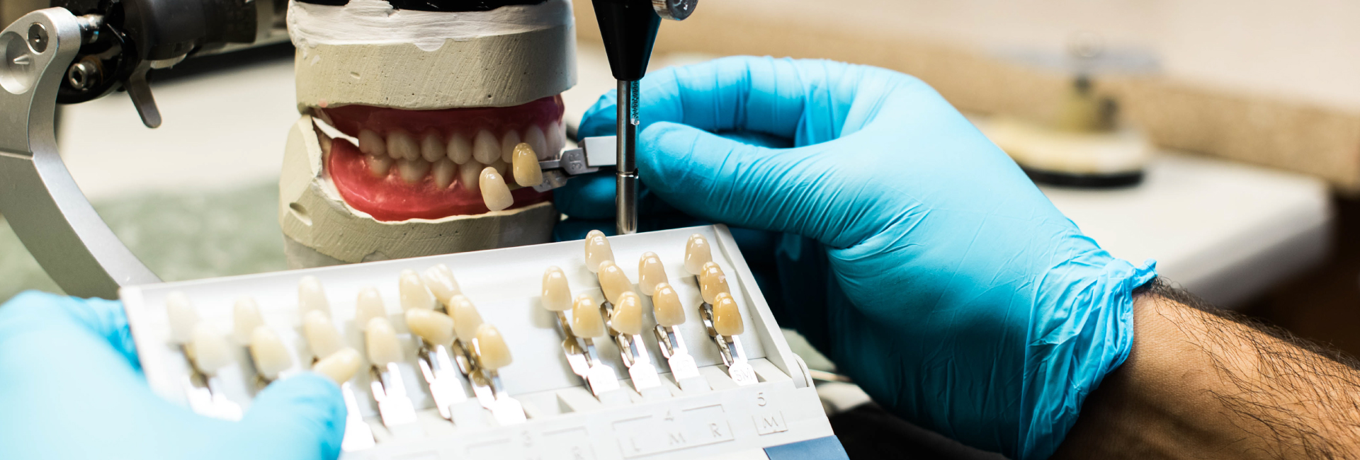 Complete dentures on the bench matching teeth colours